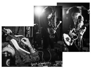 femur band live